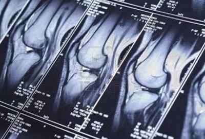 RISONANZA MAGNETICA RMN